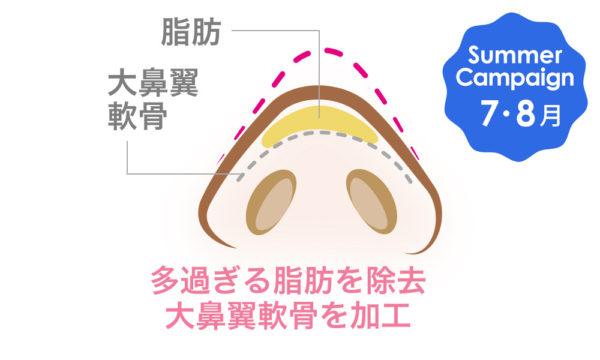 鼻尖形成術は大阪梅田のプライベートスキンクリニック