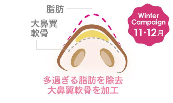 大阪梅田のプライベートスキンクリニック 鼻尖形成術