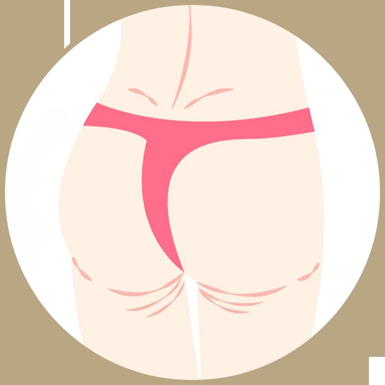 お尻のたるみ取り(ヒップアップ)手術の流れ.2デザイン