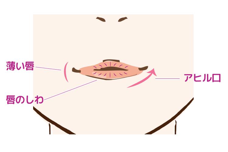 唇のお悩み(薄い唇・唇のシワ・アヒル口)