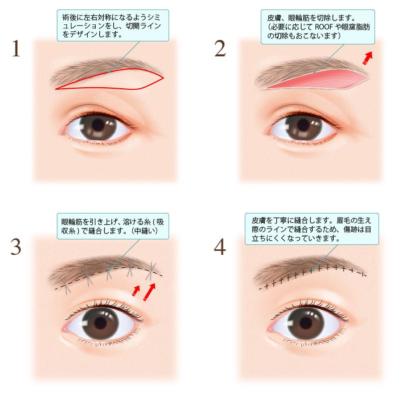 1.術後に左右対称になるようシミュレーションをし、切開ラインをデザインします。2.皮膚、眼輪筋を切除します(必要に応じてROOFや眼窩脂肪の切除もおこないます。3.眼輪筋を引き上げ、溶ける糸(吸収糸)で縫合します。(中縫い)4.皮膚を丁寧に縫合します。眉毛の生え際のラインで縫合するため、傷跡は目立ちにくくなっていきます