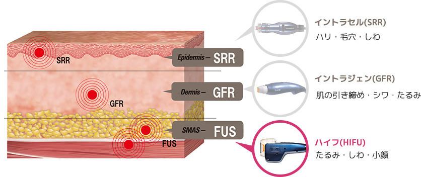 SMASと皮下組織にハイフを照射することでたるみやしわが改善できるだけでなく小顔効果もある