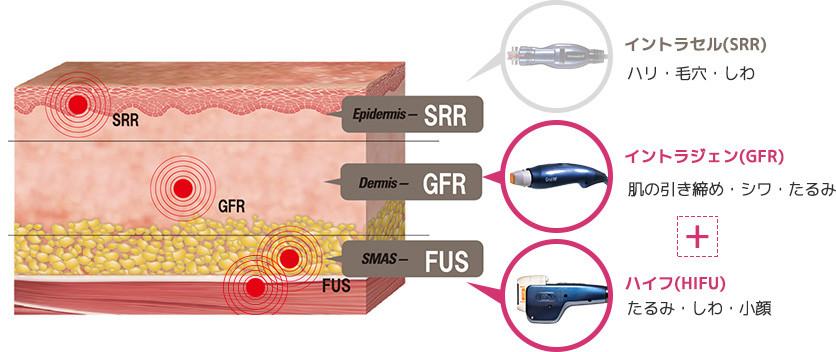 ハイフとイントラジェン(GFR)の組合せは真皮層の引き締めにも効果的