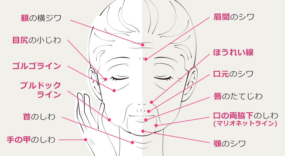 大阪 しわ治療ならPSCドクターが説明する老けて見えるしわの種類