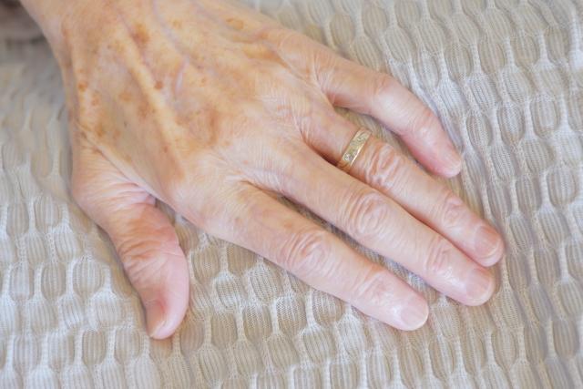 手の甲へのヒアルロン酸注入なら大阪梅田の美容外科プライベートスキンクリニック