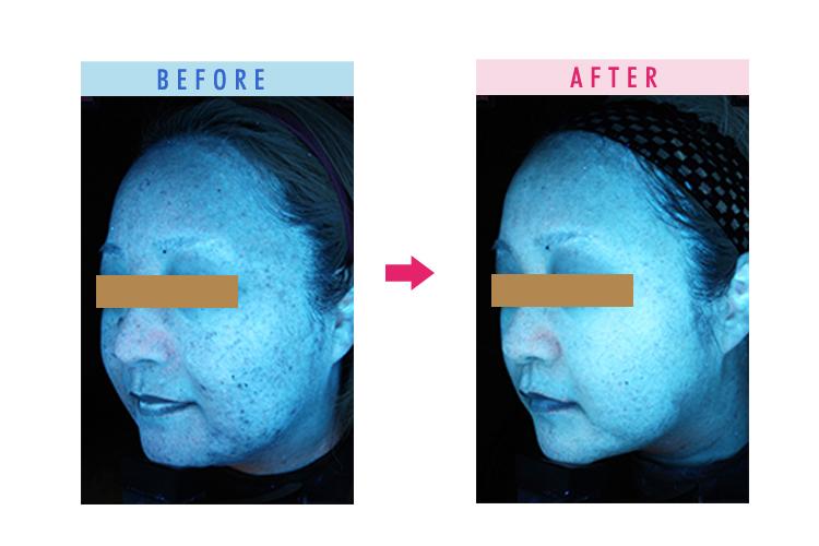 ゼオスキンを使用前、使用後の比較レビュー比較写真