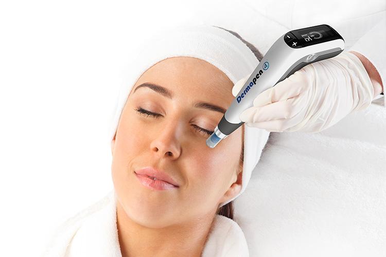 ダーマペン4の施術を受ける女性