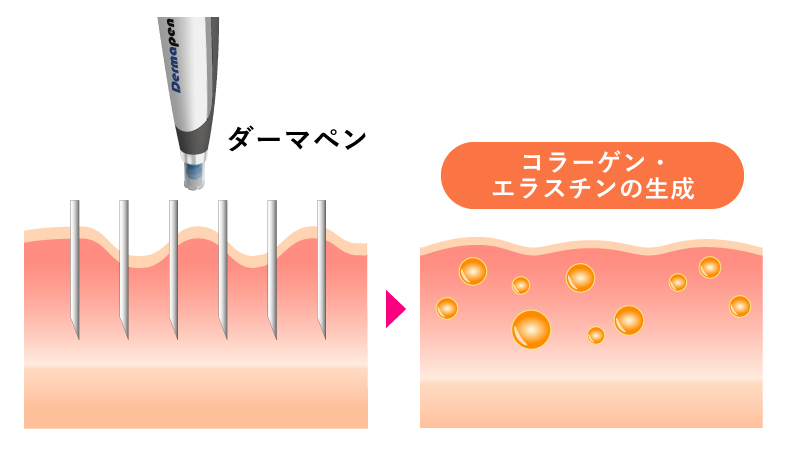 ダーマペン4は肌再生を促す
