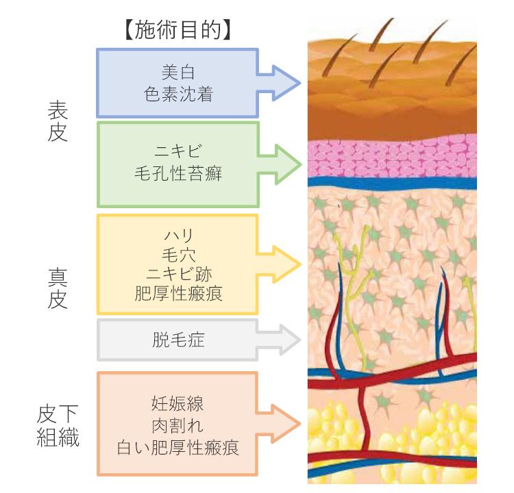 ダーマペン4の針は25段階に調整可能