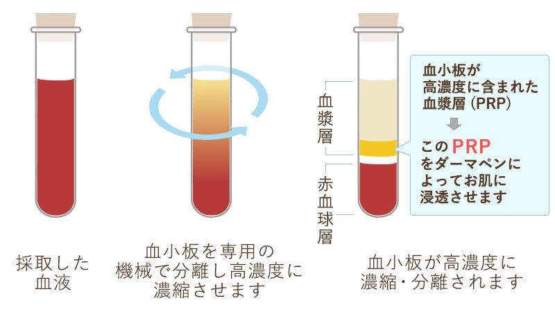 血小板が高濃度に含まれた血漿層(PRP)このPRPをダーマペンによってお肌に浸透させます