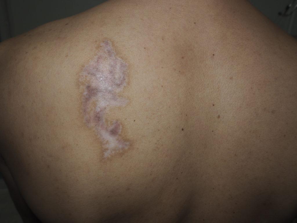 タトゥー除去最終治療から3か月後