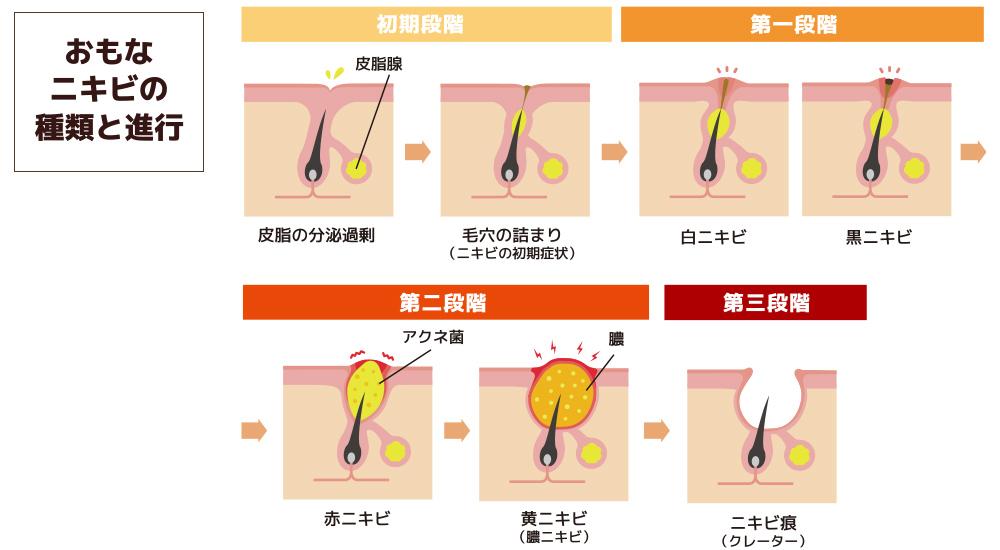 大阪 ニキビ治療ならPSC おもなニキビの種類と進行