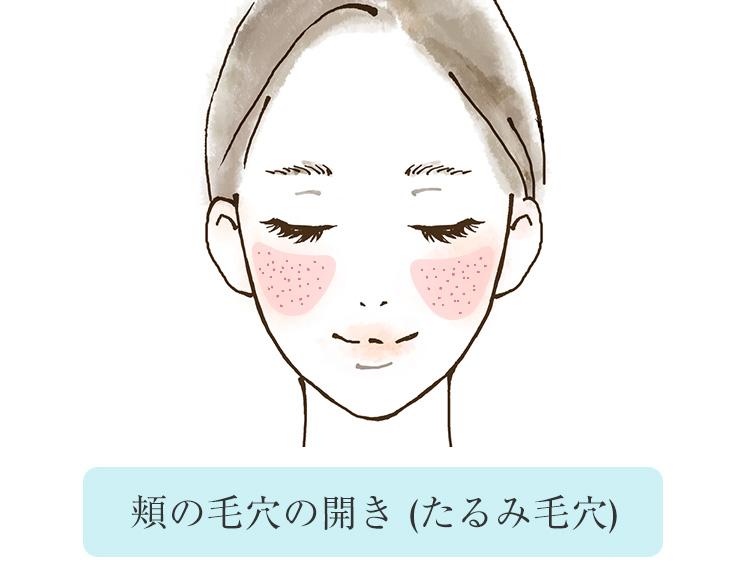 頬の毛穴の開きはたるみ毛穴