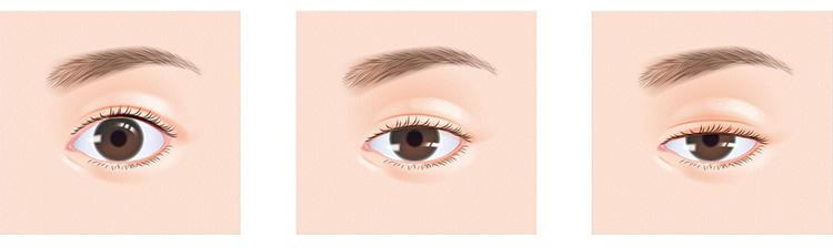 通常の目、軽度の眼瞼下垂、重度の眼瞼下垂