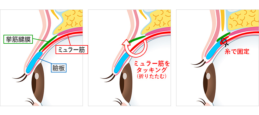 切らない眼瞼下垂手術の仕組み