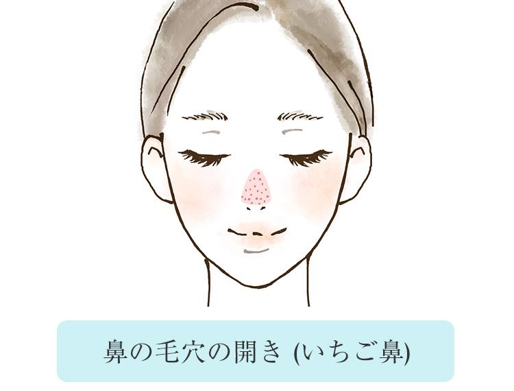 いちご鼻を予防!鼻の毛穴の開き