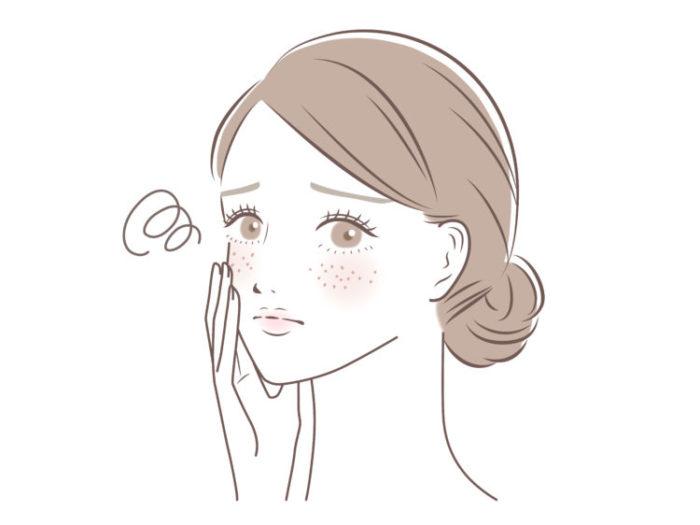 肝斑に悩む女性