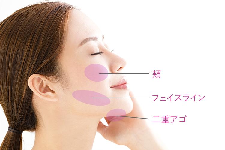 チンセラプラスは顔の脂肪溶解に効果的