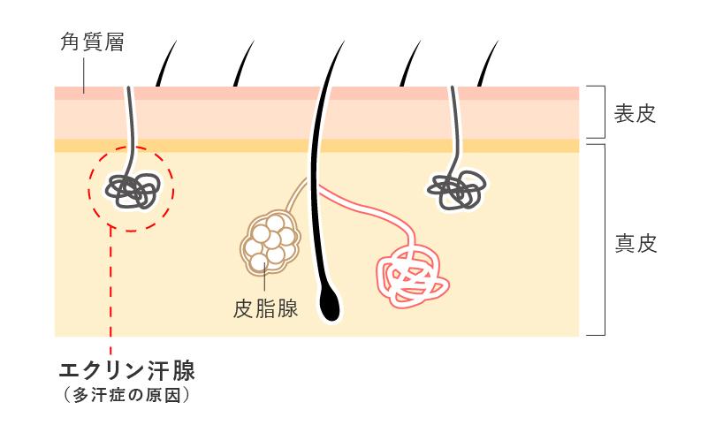 マイクロボトックスはエクリン汗腺に働きかけるため顔の汗予防に効果的