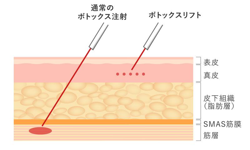 マイクロボトックスは表情筋ではなく真皮へ注入するため自然な表情を保てる