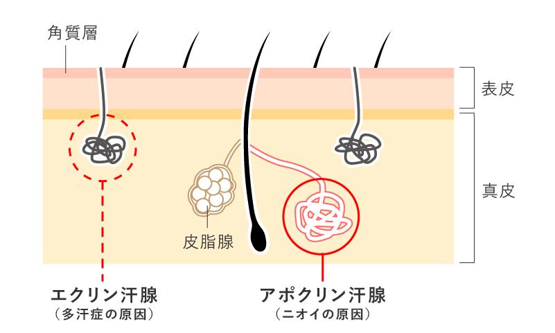 エクリン汗腺は多汗症・アポクリン汗腺はニオイの原因