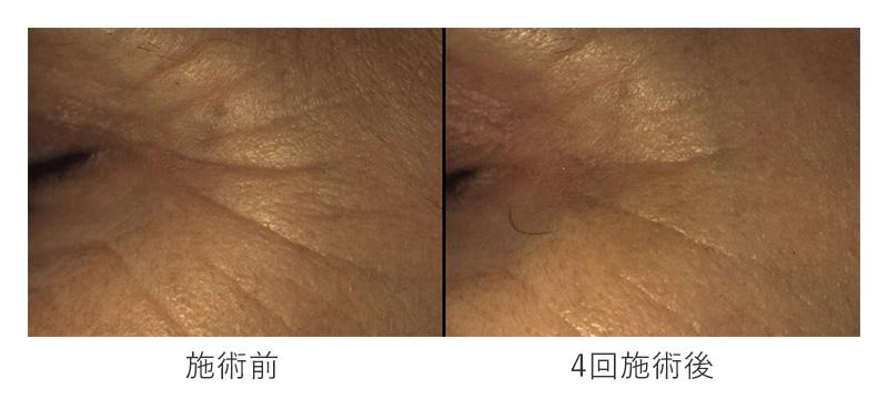 スネコス注射の施術前と4回施術後の目尻のしわの変化