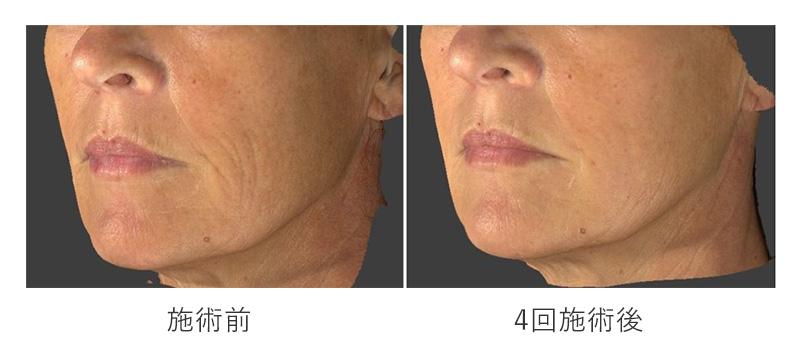 スネコス注射の施術前と4回施術後の口元のしわの変化