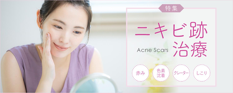 ニキビ跡治療を大阪でお探しなら美容皮膚科の当院へ!お一人お一人のお肌を丁寧に診察し、最適な治療のご提案に加え、毎日のスキンケアのアドバイス