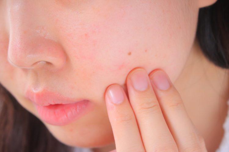 ビタミンA反応(レチノイド反応)による肌の赤み